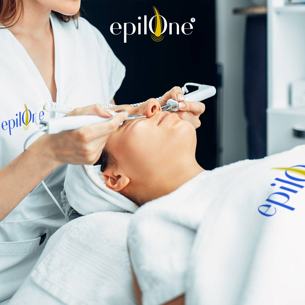 epilone